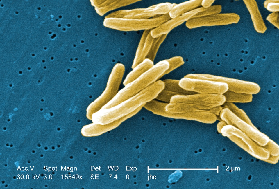 Mycobacterium, bacteria de la tuberculosis- Janice Carr, Centers for Disease Control and Prevention