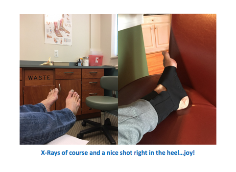 X-Ray Planter Fasciitis-Chasing Fitness