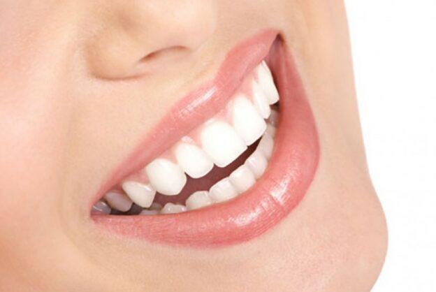 Pentingnya Periksa Gigi Setiap 6 Bulan Sekali
