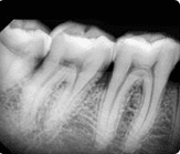 cocoon-Dental-Images