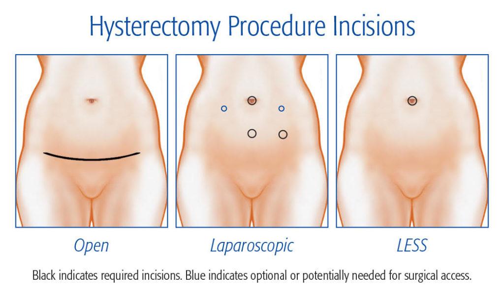 Hysterctomy procedure incision