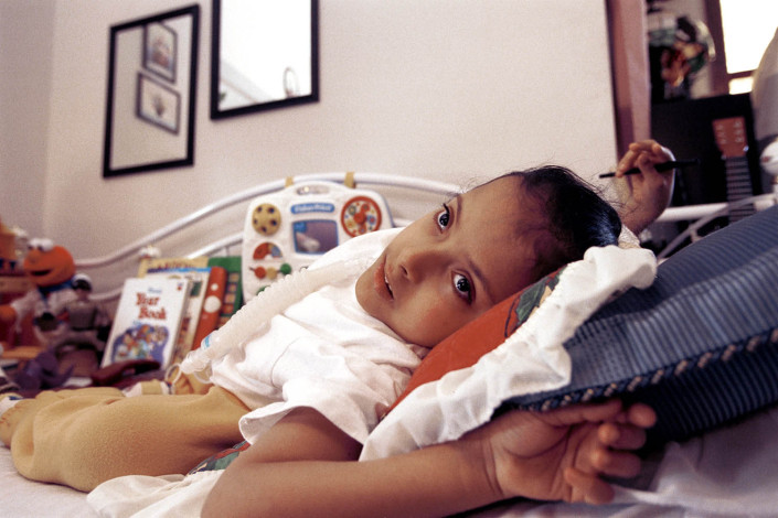 A boy with Spina Bifida lays in his bed attached to a ventilator.