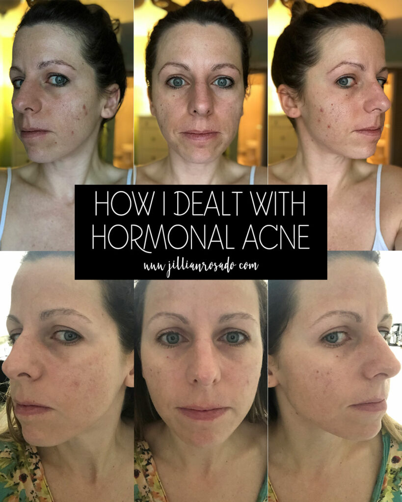 How I Dealt with Hormonal Acne | Skincare Routine