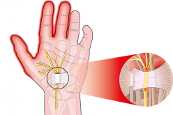 Solutions for Carpal Tunnel Syndrome