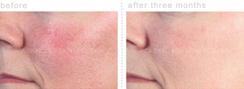 Before and After Photos of Sensitivities due to Rosacea