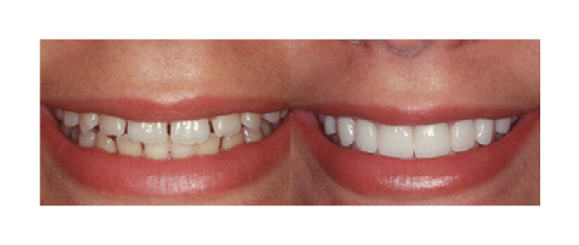 Porcelain-Veneers-2