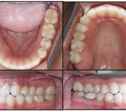 After Orthodontics-case2
