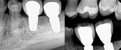 Implant case 1-after