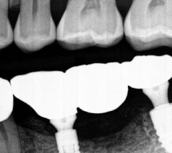 Bloomfield Dental Center | Dental Implant After case