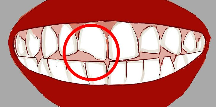 Bloomfield dental center - Blog - How to deal with cracked tooth