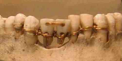 Ancient Egypt Dentistry