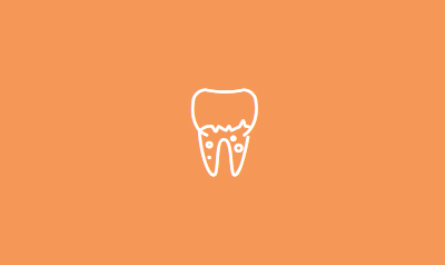 Crowns and Bridges | Dental Center in Orange County, CA | Top Cerritos Dentist