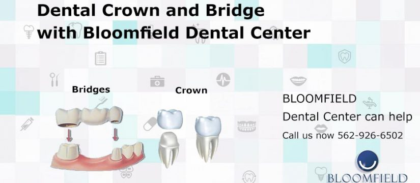 Dental Crown and Bridges | Top Cerritos Dentist | Best Dental care office
