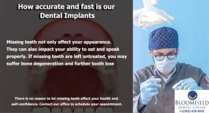 How accurate and fast is our Dental Implants | Dental Implants Dentist in Cerritos