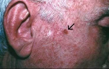 squamous cell skin carcinoma