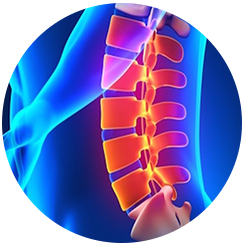 Chiropractor for Herniated Disc