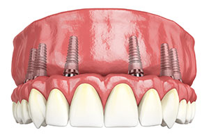Full-Arch Implant 1