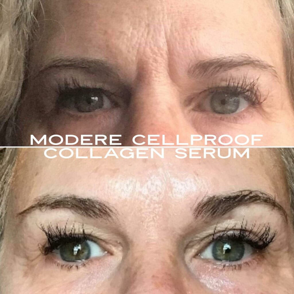 CellProof collagen serum Before and After Photos of eyes