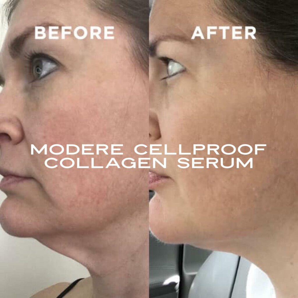 CellProof collagen serum Before and After photos of a neck waddle