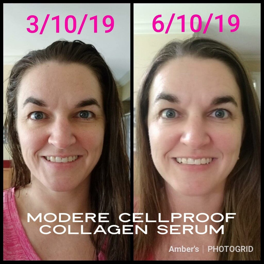 CellProof collagen serum Before and After photos of full face