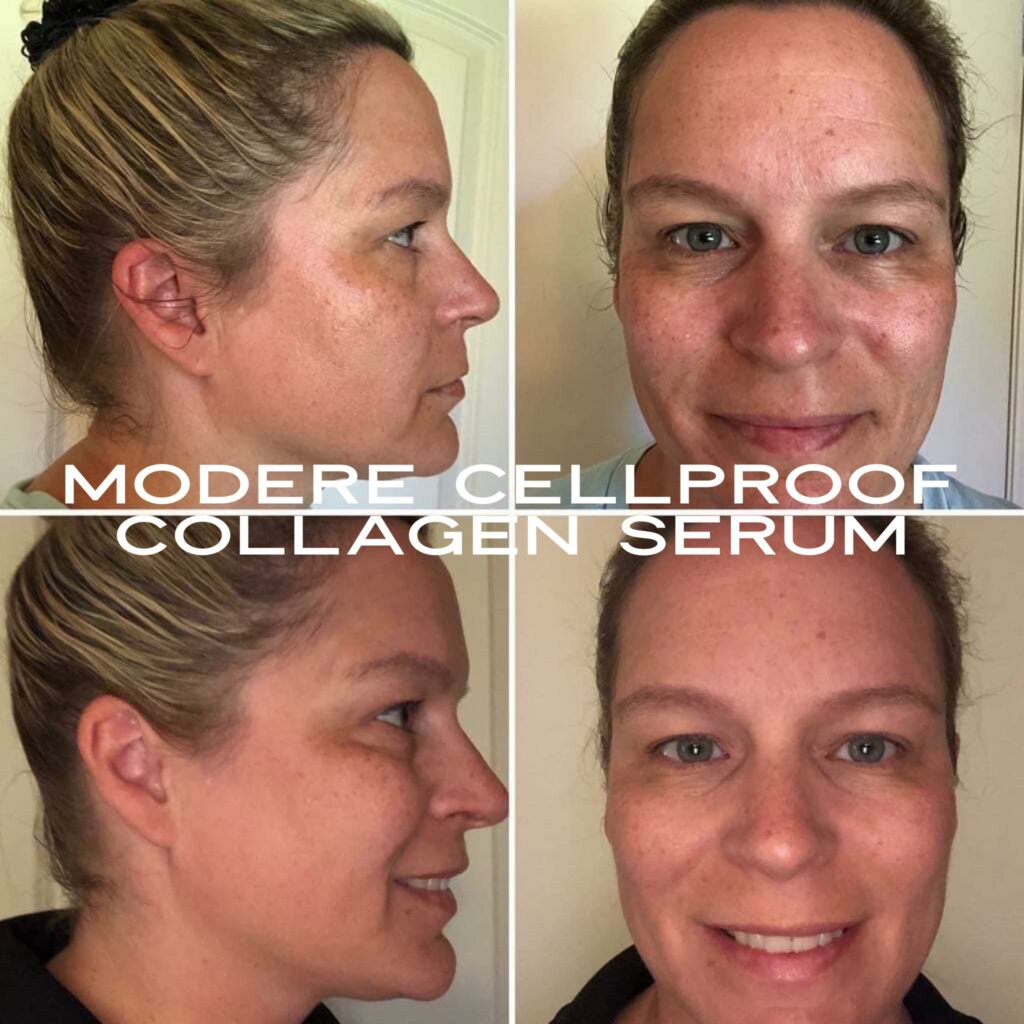 Modere CellProof Collagen Skin Care Results