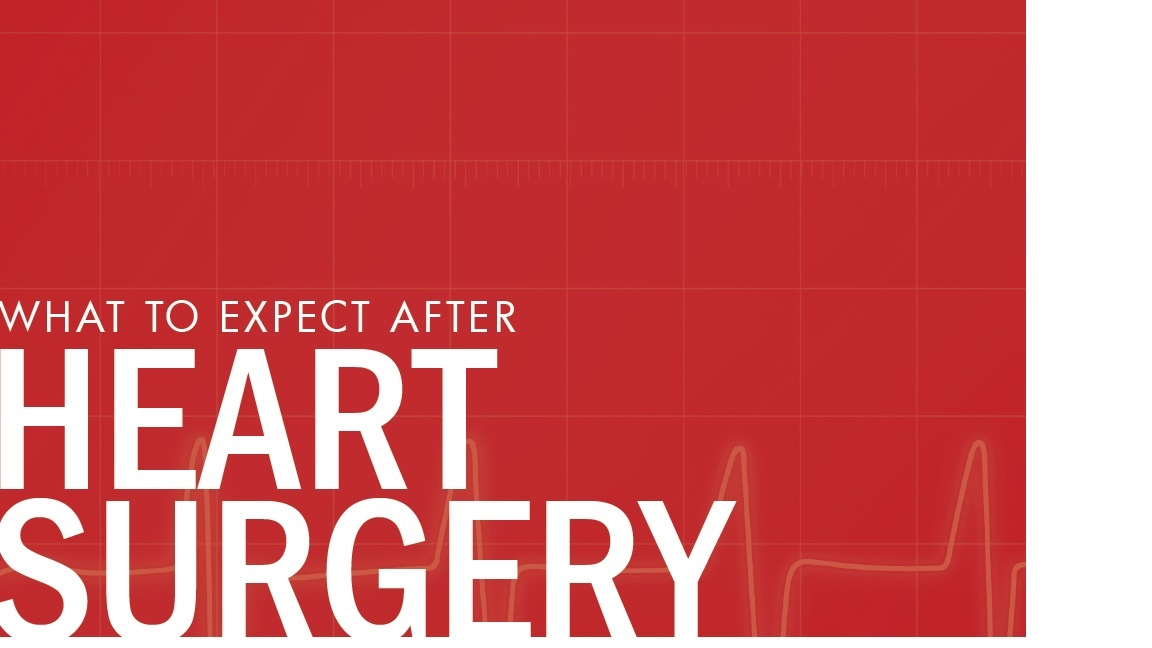 what to expect after heart surgery