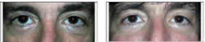 dark under eye circle treatment