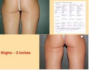 exilis thighs
