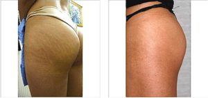 stretchmark before and after - Version 2