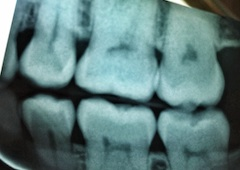 What is a Cavity and How Do You Prevent Getting One?