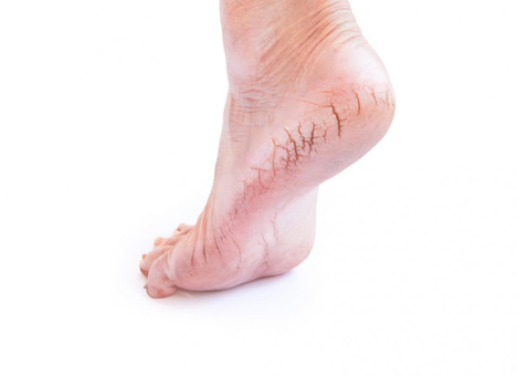 A picture of a woman's foot with cracked heels