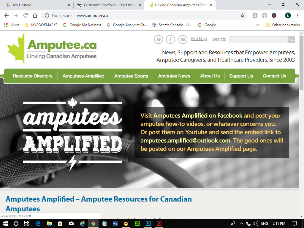 Amputees Amplified