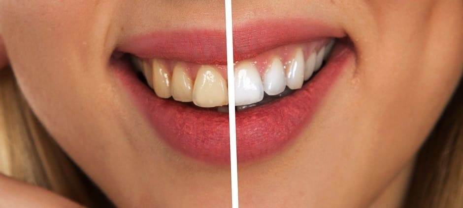 Teeth Whitening Kits Reviews - 10 minutes for mom
