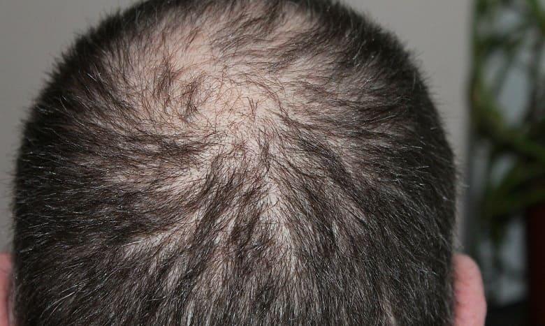 Seasonal Hair Fall