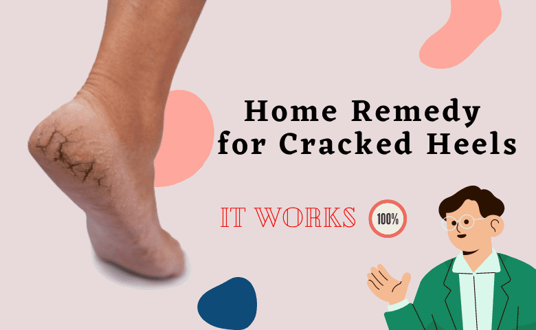 Easy Remedies to Cure Cracked Heels using Home Ingredients