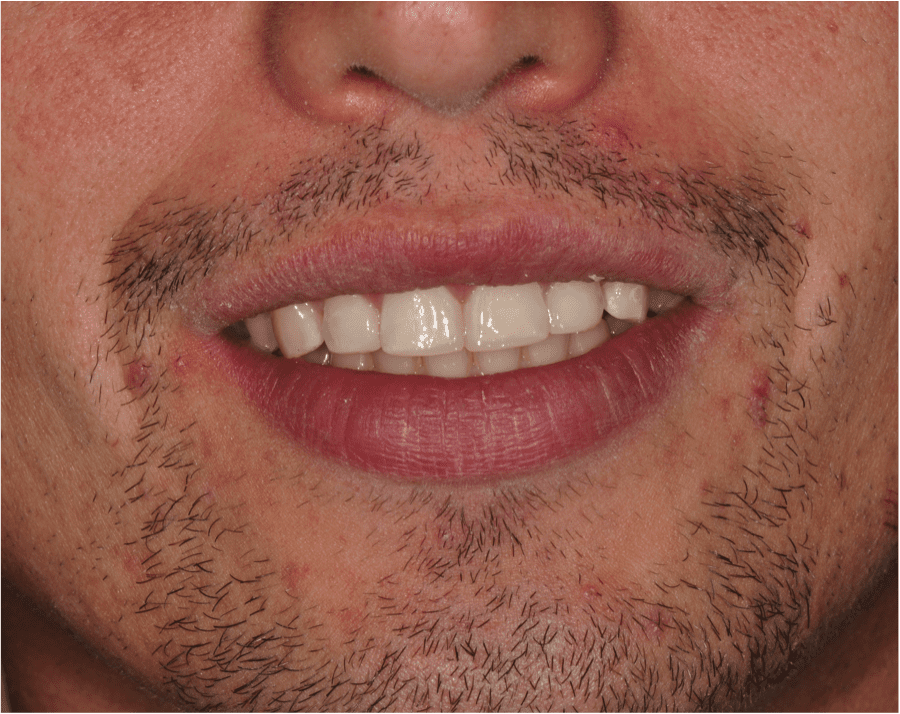 a smile of a patient who visit our costa mesa dentist