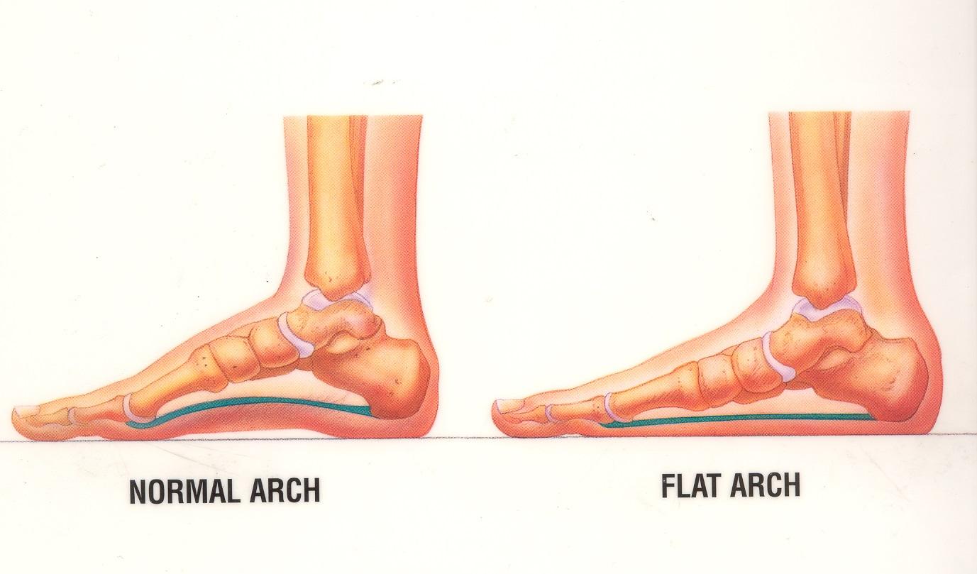 Flat Foot Diagram