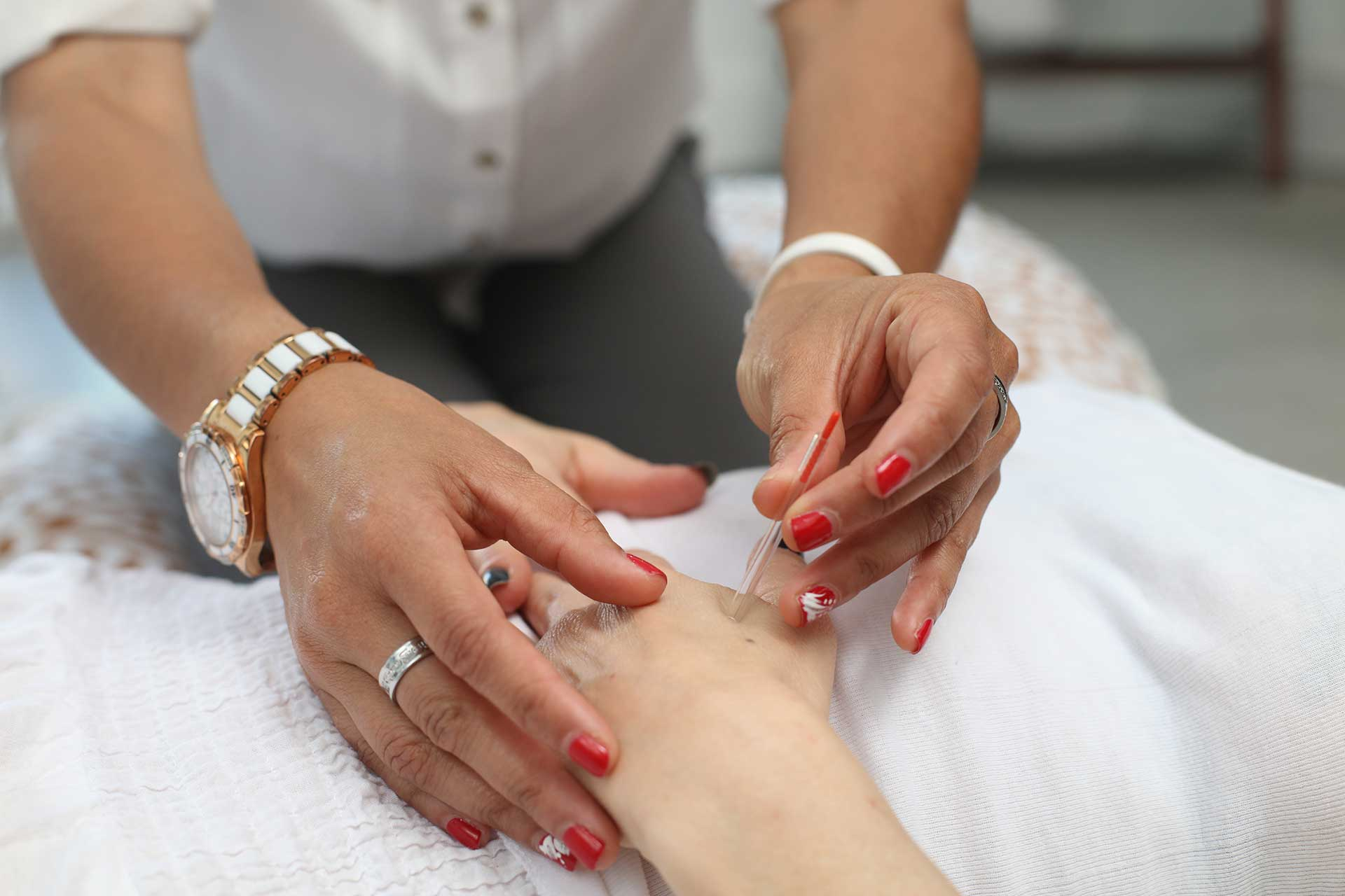 hands of a female acupuncturist treating a patient's hand