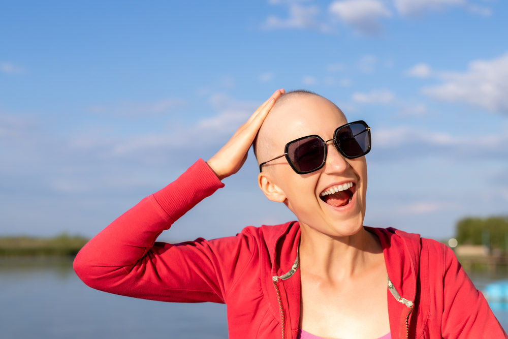 Our Crown and Glory: Coping with Chemo-Induced Alopecia