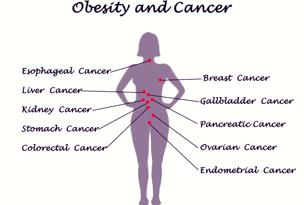 Obesity-Related Cancers and Implementing Behavioral Change
