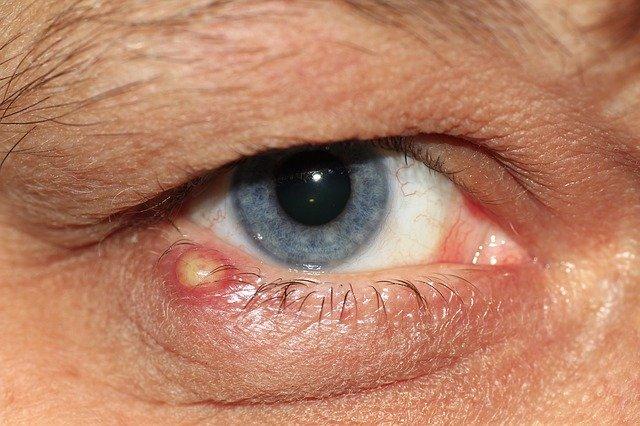 Eye Infection