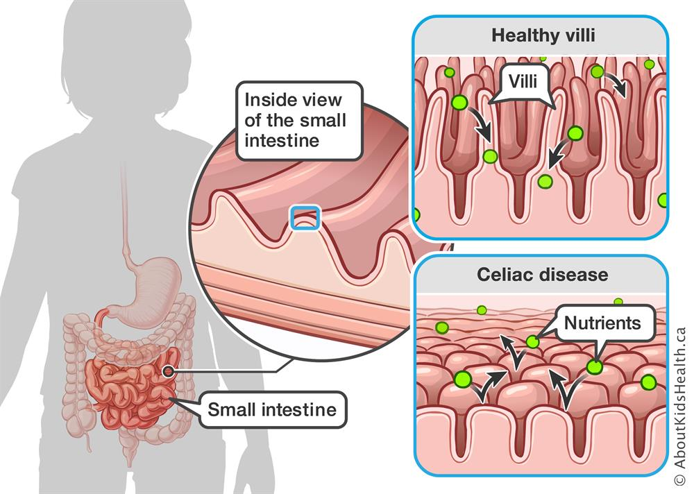 A healthy small intestine is lined with finger-like projections (villi) which help the intestine to absorb nutrients. With celiac disease, the villi become damaged and flattened. This may affect the absorption of nutrients.