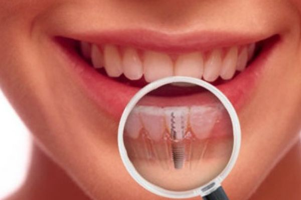 How to Choose the Best Dental Implant Specialist