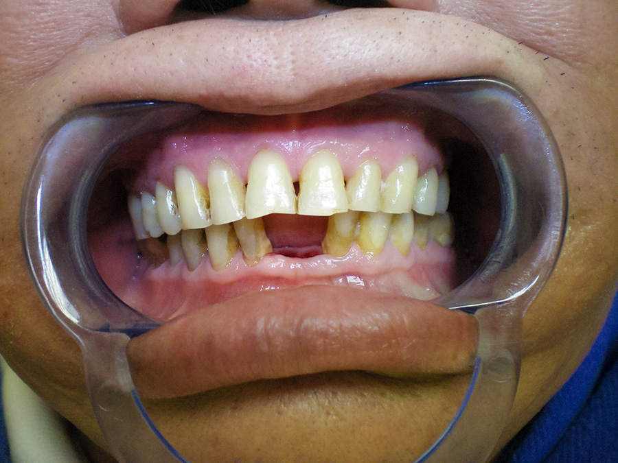 Implant - Crown Case 1 - After