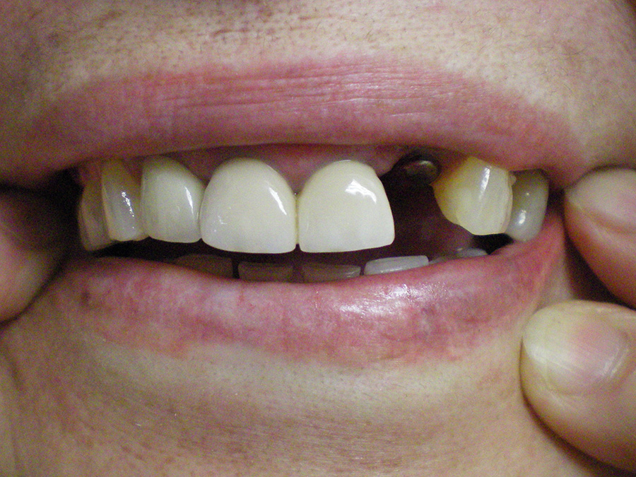 Implant - Crown Case 5 - After
