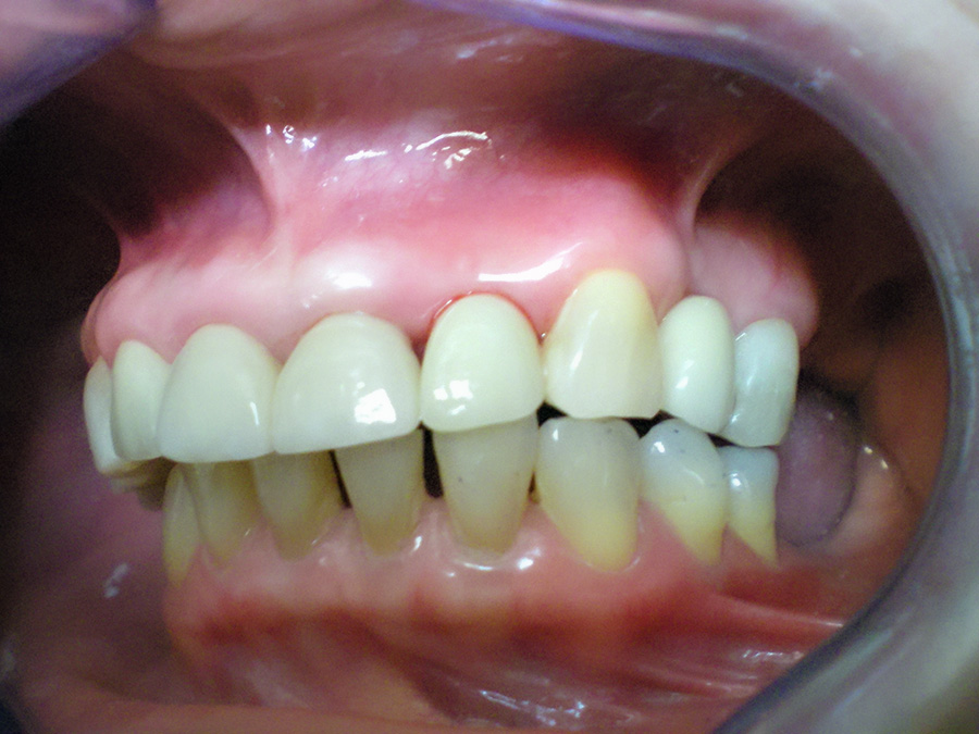 Implant - Crown Case 7 - After