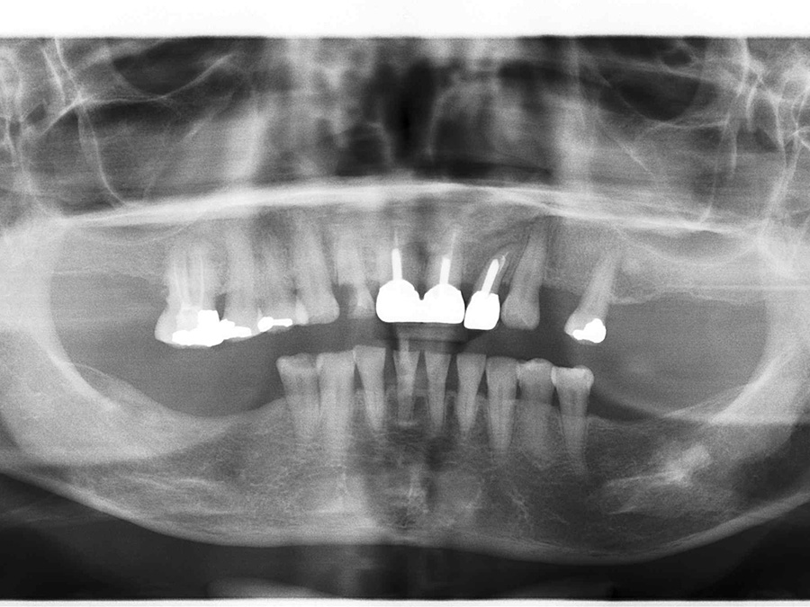 Implants Vo - After