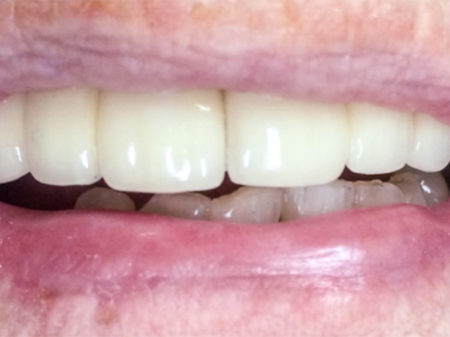Frenectomy - 4 Months Later