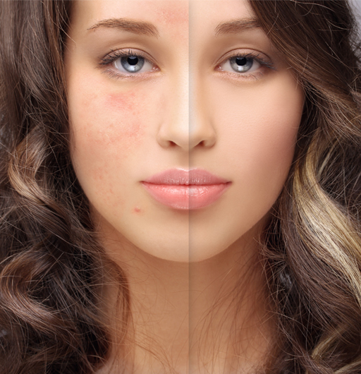 Acne Marks Treating Acne Scars