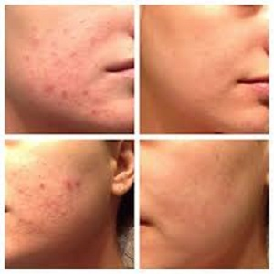 Claarlight Acne women Treatment